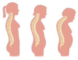 Back pain from large breast pics